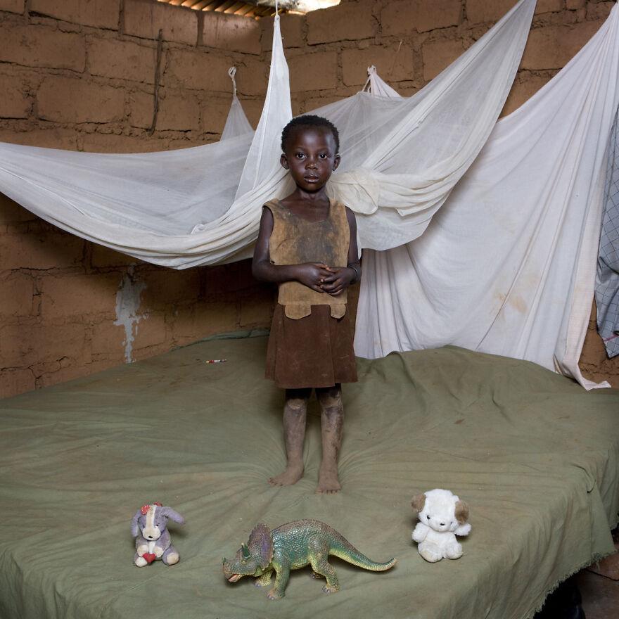 Chiwa, 4, Mchinji, Malawi