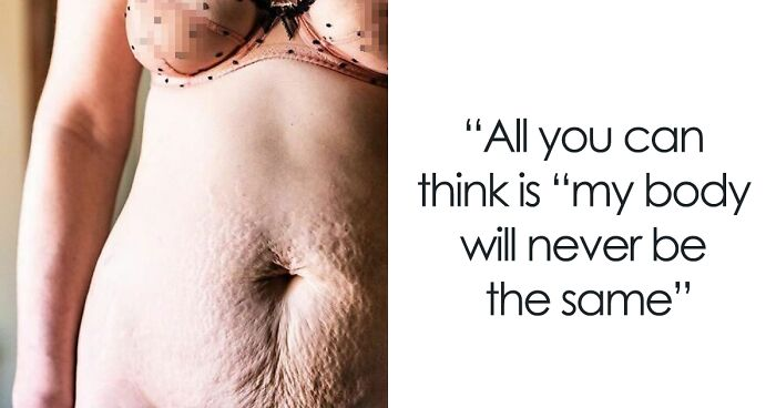 28 Beautiful And Raw Photos Of Women Proud Of Their Postpartum Bodies