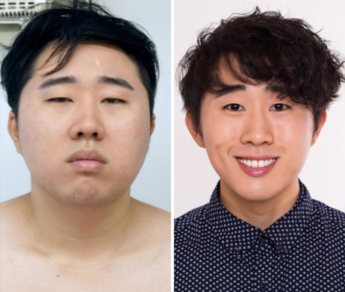 One Year Transformation. 23 To 23 (Almost 24 Hahaha). What A Gym Membership, Self Love And A Skincare Routine Can Do For You