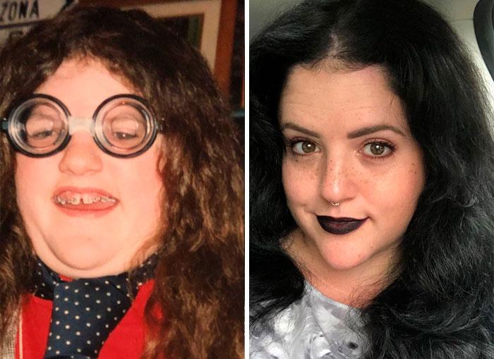 """Estas personas que solían ser """"patitos feos"""" comparten sus transformaciones, y están irreconocibles (50 nuevas fotos)"""