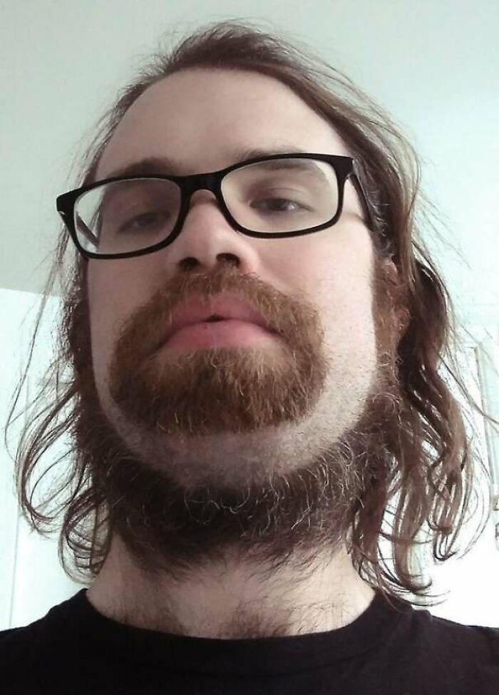 A New Species Of Neck Beard