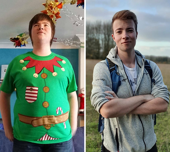 Age 18 To 23, Used To Look Up In Photos To Try To Hide My Substantial Double Chin