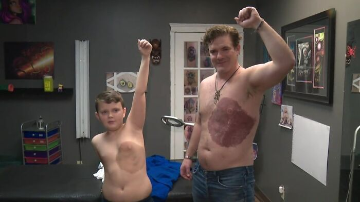 Dad Sits For 30 Hours Straight To Get Equivalent Tattoo To His 8-Yr-Previous's Birthmark