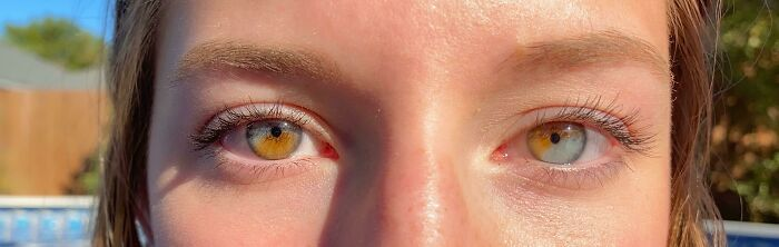 I Have Partial Heterochromia In Both Eyes
