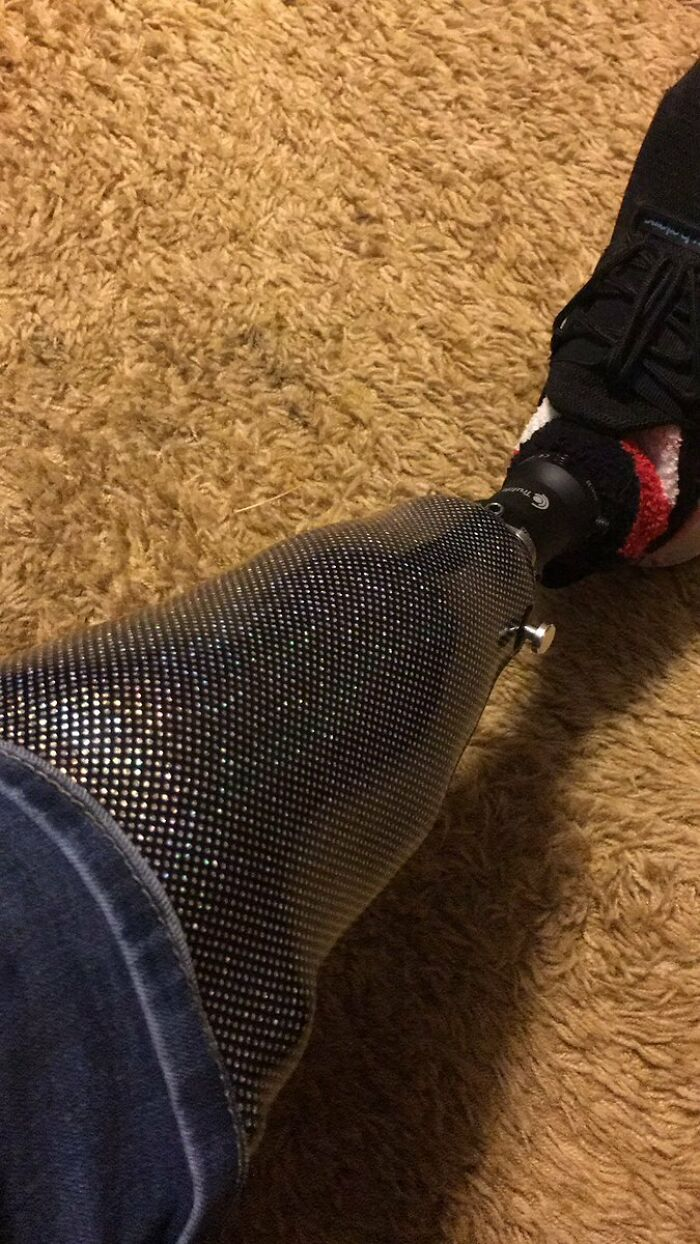 My Wife Bought Me A New Leg For Christmas