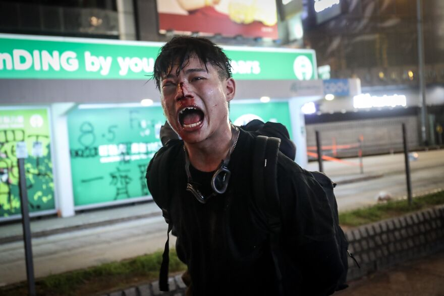The Silent Cry Of Hong Kong Protester