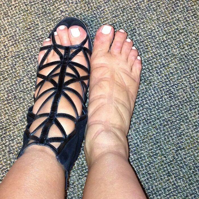 Having Swollen Af Pregnancy Feet