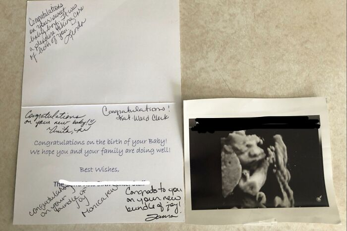 When The Nurses At The Hospital You Give Birth At Mails You The Ultrasound Of Your Baby After You Left It In The Labor Room, Plus Congratulatory Greeting Card!