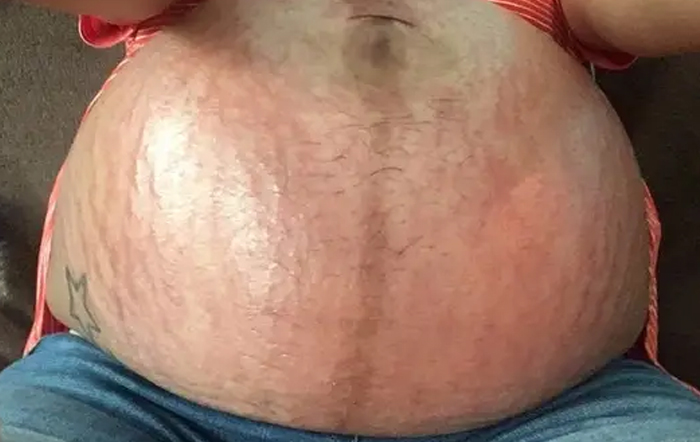 Pregnancy And Puppp Rash. The Unglamorous Side Of Pregnancy