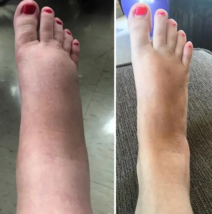 My Pregnancy Feet Versus My Normal Feet