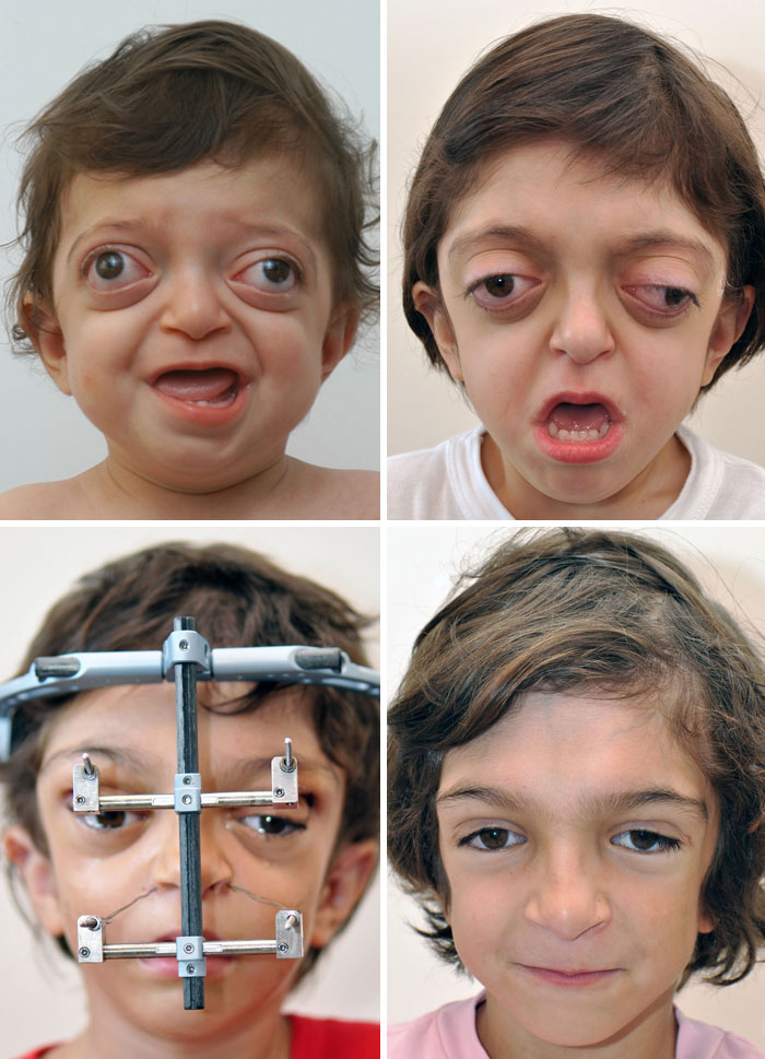 Plastic Correction In A Boy With Crouzon's Syndrome. He Even Showed Improvement In Vision And Breathing