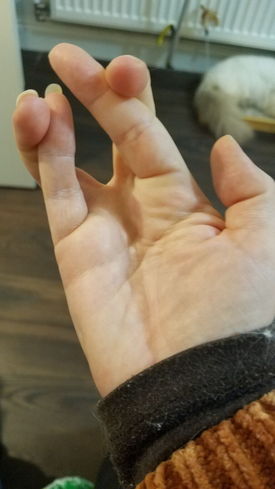 I Can Cross Both Pairs Of Fingers Simultaneously, And On Both Hands At The Same Time