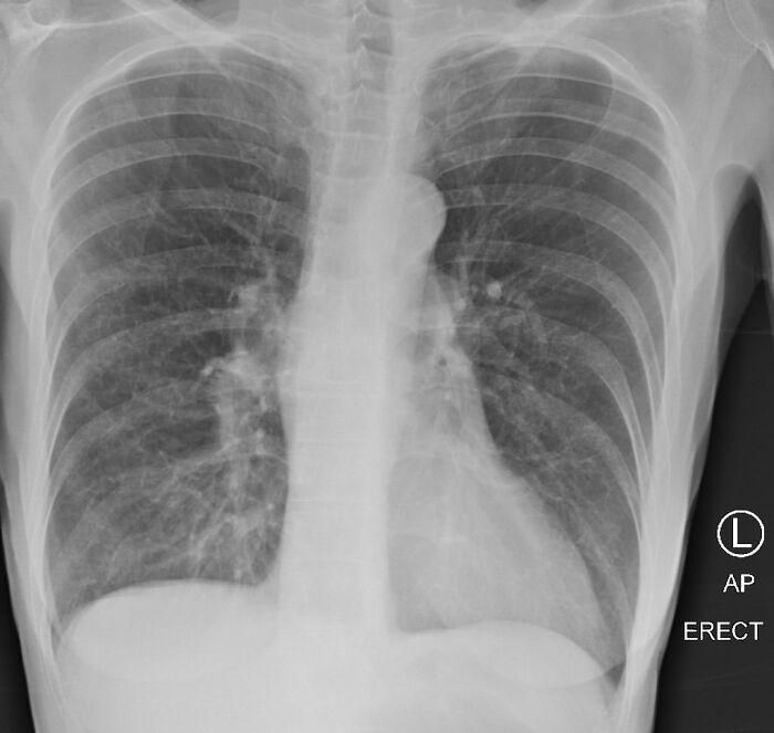 pluca palacza i osoby chorej na covid-19