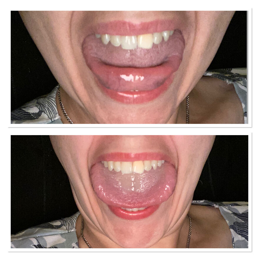 Top Photo Is My Tongue Touching My Tongue And The Bottom Photo Is Showing How Wide My Tongue Is.