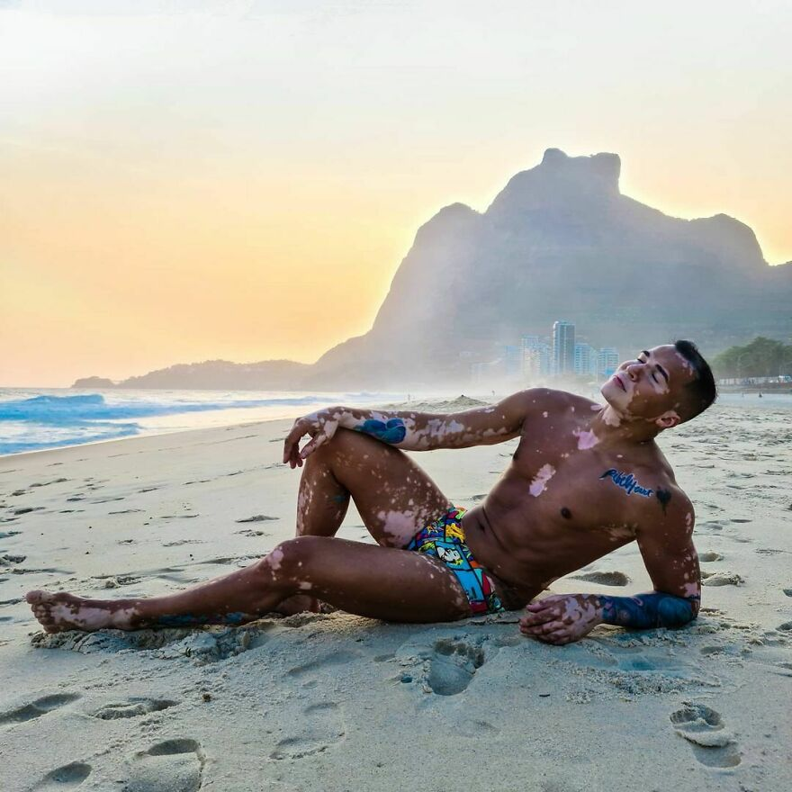 After Suffering Depression And Prejudice Because Of Vitiligo, This Brazilian Embraces His Natural Beauty And Becomes A Model