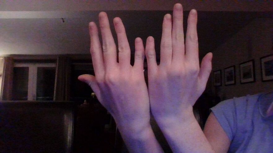 Clinodactyly, When Someone Is Borne With Bent Pinkies. They Are Also Half The Size Of A Normal Persons