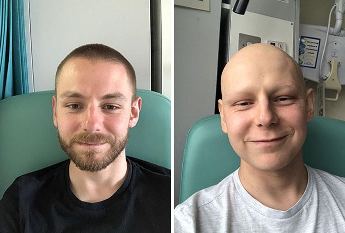 La diferencia de tres meses de quimioterapia dura