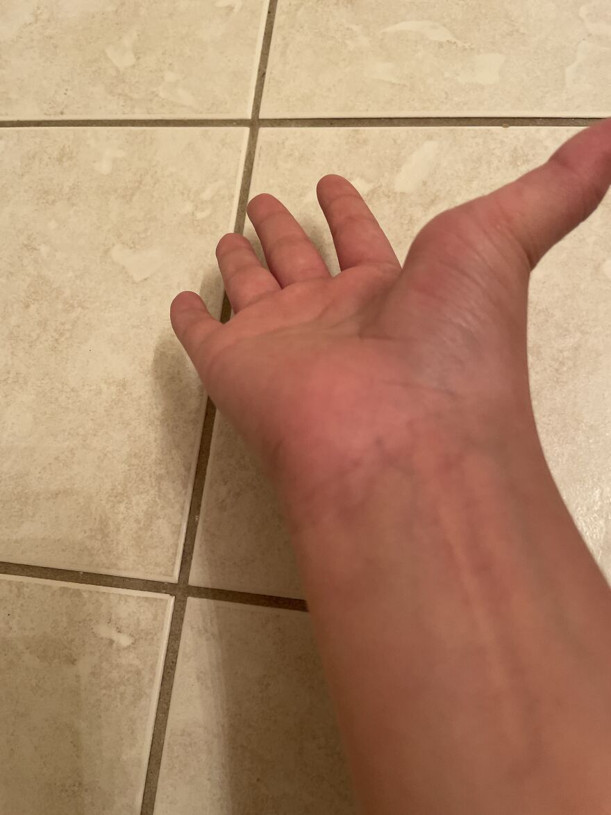 I Don't Know If This Counts But My Thumb Can Do This