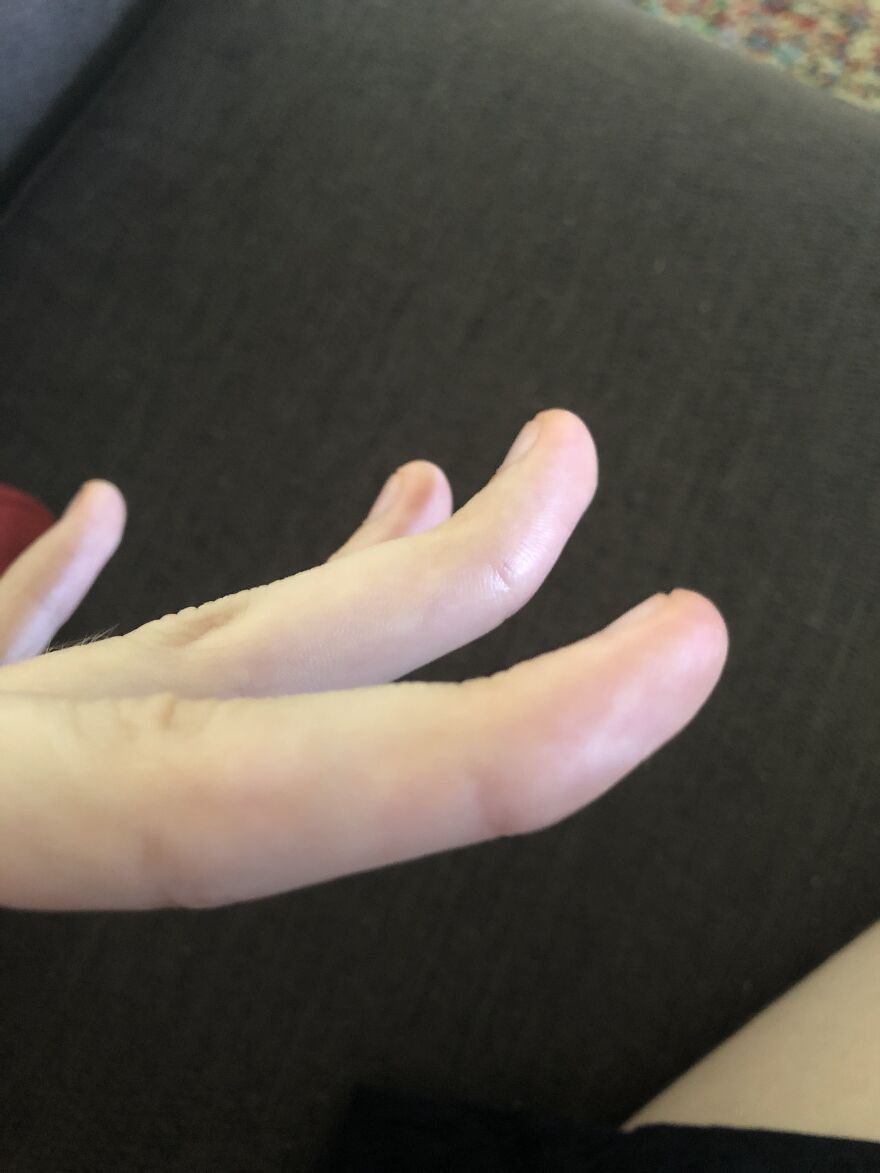 I Have Really Bendy Fingers! It's Not That Impressive But Ah Well (Sorry For The Bad Photo)