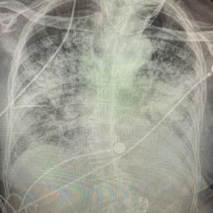 Unas radiografías muestran los efectos del COVID-19 en los pulmones comparados con los de un fumador