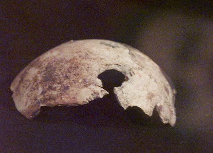 Hitler's Skull Was Fake, Or Someone Else's Skull