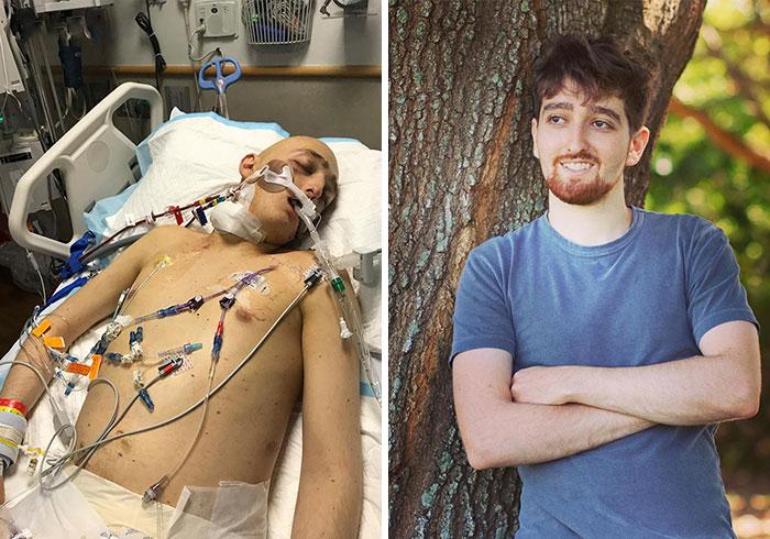 Hace 2 años recibí un transplante de médula ósea para curarme de mi 2ª recaida de leucemia. Hoy estoy oficialmente curado