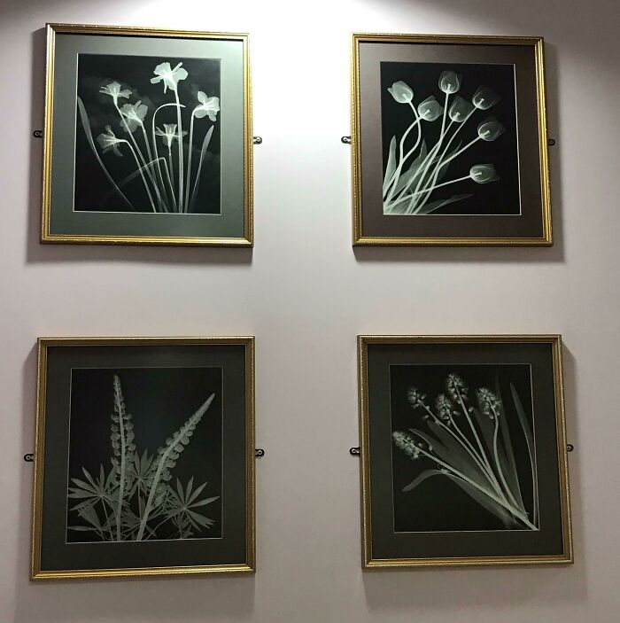The Radiology Waiting Room In Local Hospital Has The Usual Naff Floral Decor, Except... They're X-Rays