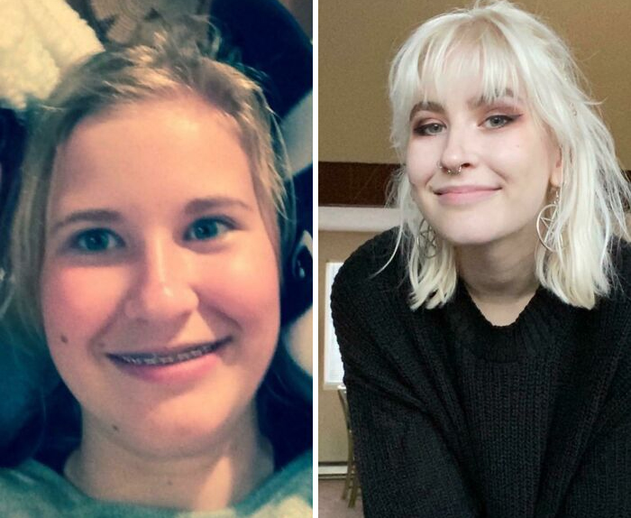 14 To 20 Because People Said My Resting Face Was Angry