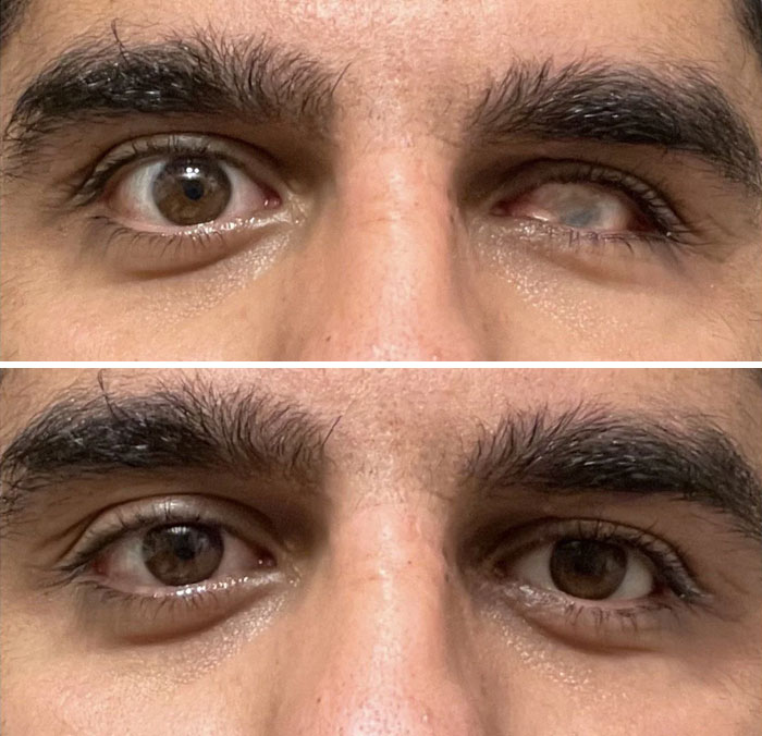 Before And After I Wear My Fake Eye