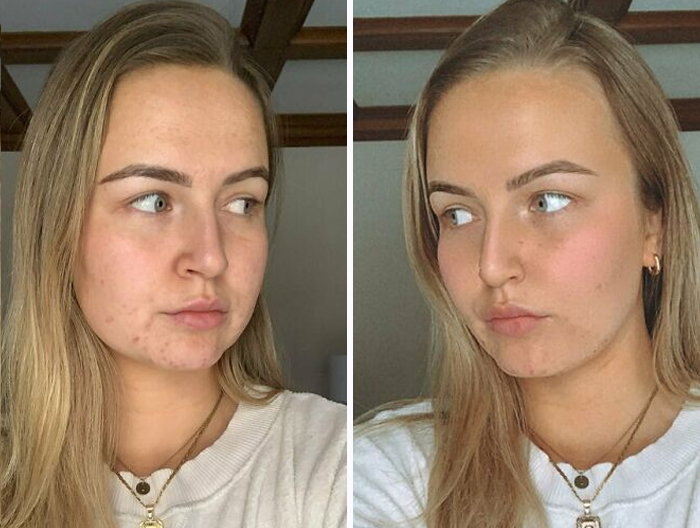 Misleading-Influencers-Beauty-Filters