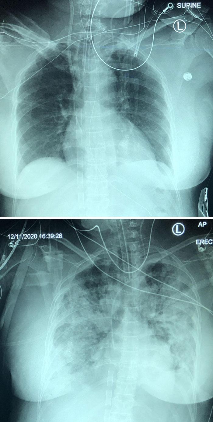 5-Day Progression Of Covid Pneumonia