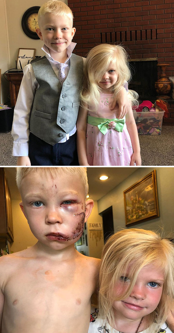 My Six-Year-Old Nephew Bridger Saved His Little Sister's Life By Standing Between Her And A Charging Dog