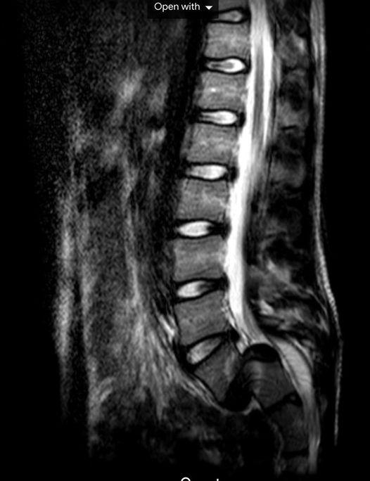 MRI-604f623563db8.jpeg