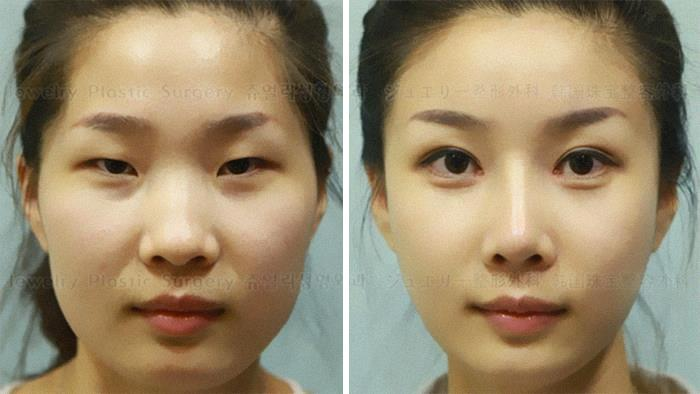 Til Many Chinese Medical Tourists Who Go To South Korea For Inexpensive And High Quality Plastic Surgery Have Difficulty Re-Entering China Due To Their Passports Photos Not Matching Their New Face Post Op.