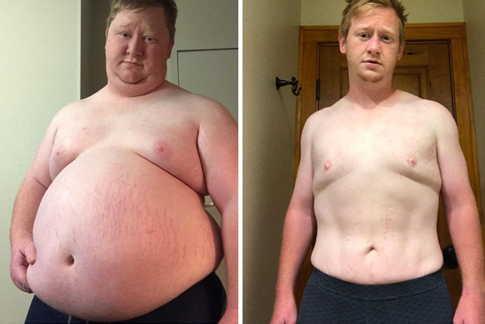 Lost 200 Pounds In A Year. Just Did The 20:4 Fast And Walked ~5 Km Every Day (360 Lbs To 160 Lbs)