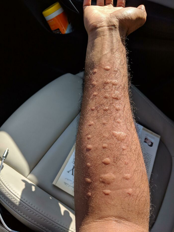 Results From An Allergy Test - My Body Reacts To Every Type Of Local Allergen