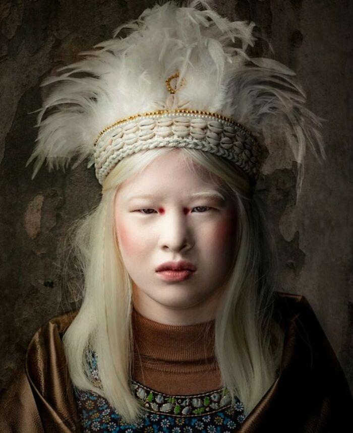 Xueli-Abbing-Chinese-Albino-Fashion-Model-Xueli-A