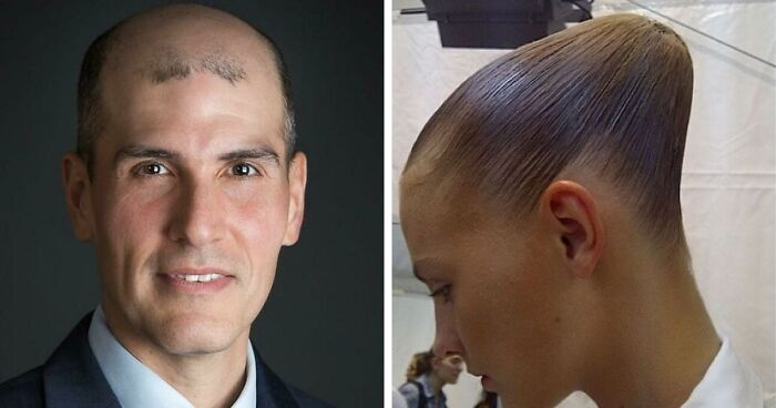 40 Tragic Hair Accidents, As Shared In This Online Community (New Pics)