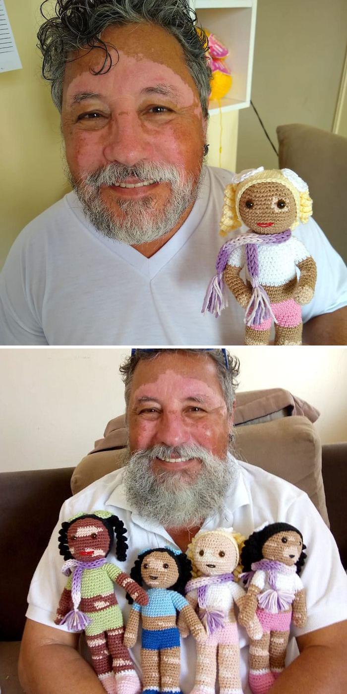 Un abuelo con vitíligo hace muñecos de ganchillo para que los niños con esta enfermedad se sientan mejor