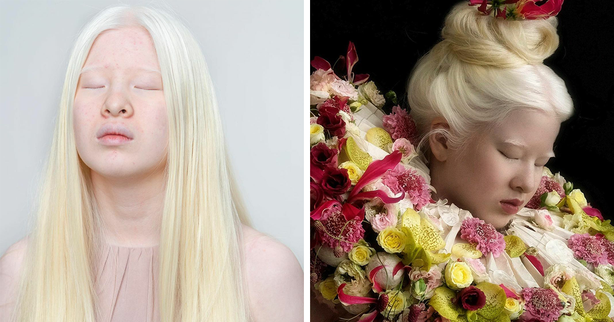 This Abandoned Chinese Baby With Albinism Grew Up To Become A Vogue Model (64 Pics)