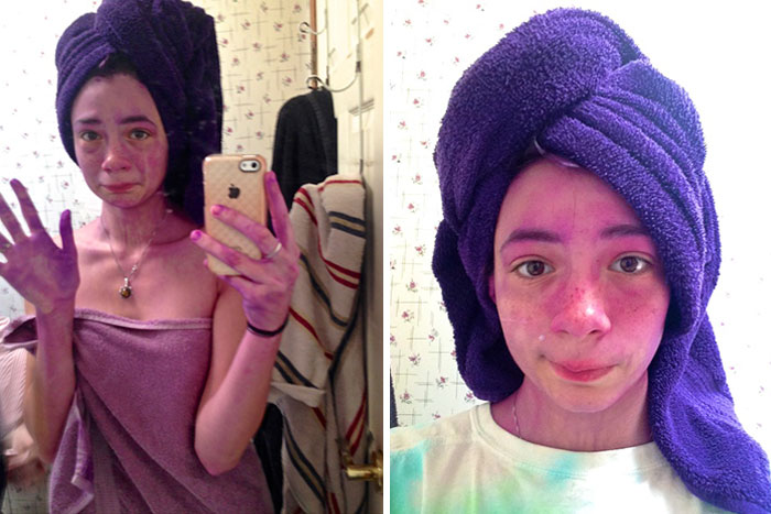 Purple Dye Disaster. I Was A Walking, Wide-Eyed Eggplant