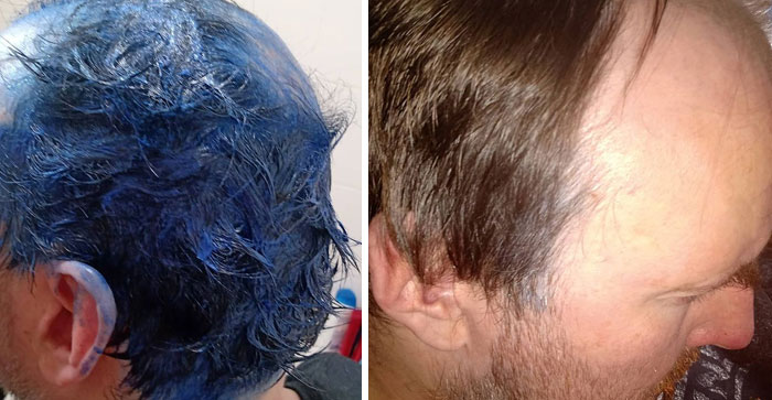 During... And After. Yep, Neil's Hair Doesn't Do Dyeing