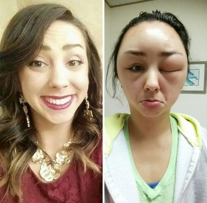 So, My Friend Had A Pretty Ridiculous Allergic Reaction To Hair Dye. Pic On The Left Is What She Normally Looks Like