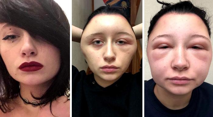 An Allergic Reaction To Hair Dye