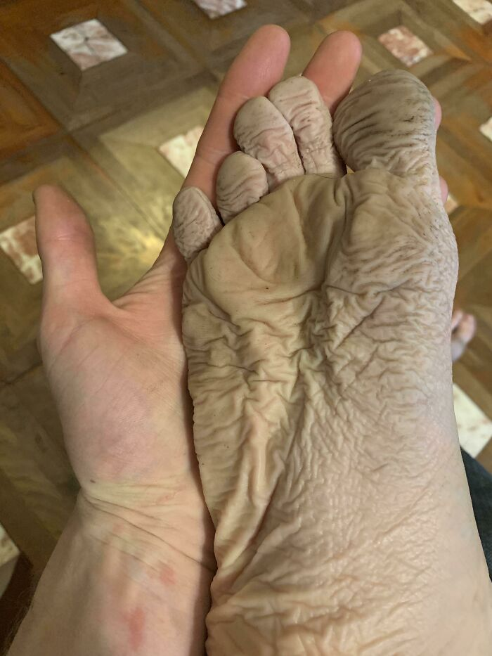 My Foot After Wearing A Wet Boot With A Hole In It For 10 Hours