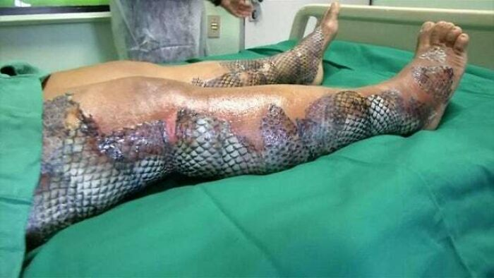 Fish Skin Can Be Grafted Onto Burns. It Recruits The Body's Own Cells And Is Converted Into Living Tissue Over Time