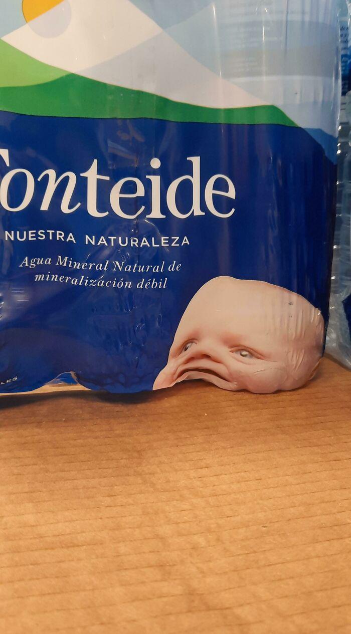 La colocación de la cabeza de este bebé no fue bien pensada