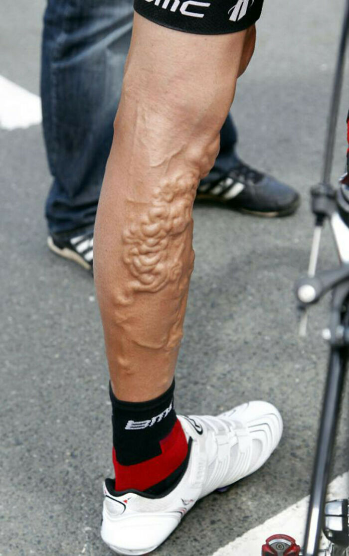 George Hincapie's Legs After The Tour De France Race