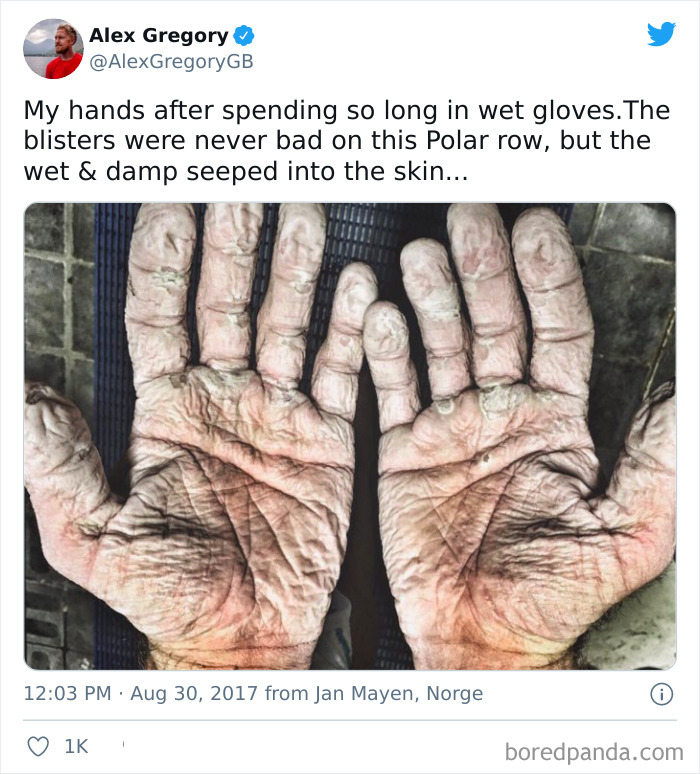 Olympic Rower's Hands
