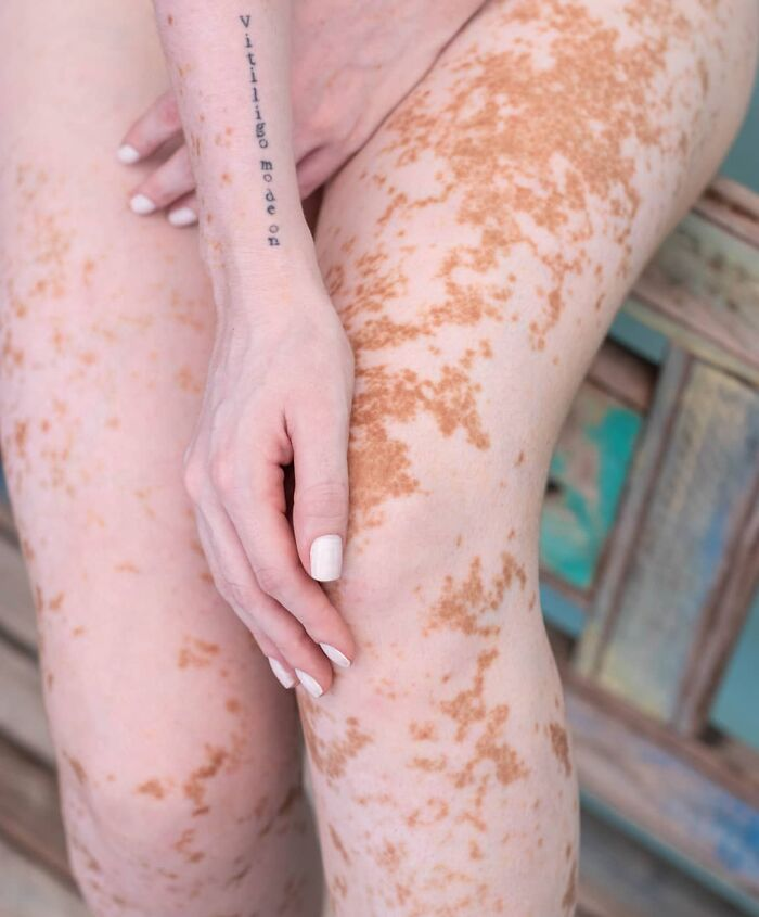 Woman With Vitiligo Overcomes Her Self-Confidence Issues After A Photoshoot With Famous Makeup Artist